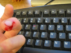 typing hurt finger